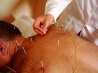 Akupunkturun uyarı noktaları