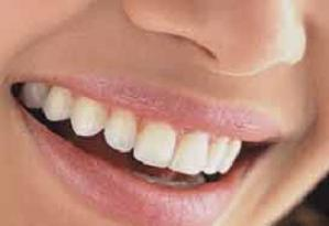 Düzgün dişler ağız sağlığının değerini arttırıyor