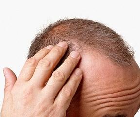 Şeker ve saç kaybı arasındaki ilişki