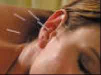 Akupunkturun felsefesi