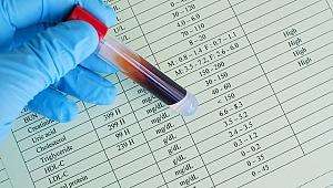 Harvard Sabri Ülker Merkezi'nden bilim dünyasında kolesterol ile ilgili çığır açan buluş