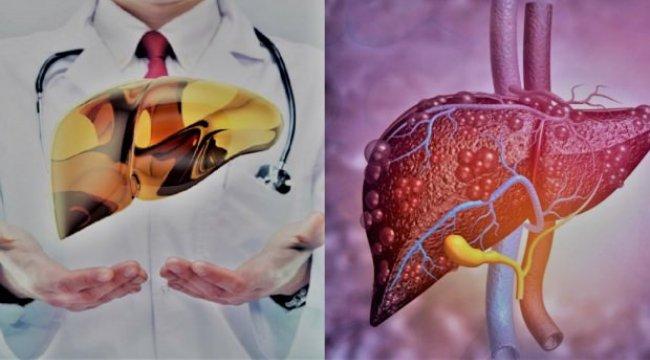 Karaciğer Yağlanması belirtileri, bitkisel tedavi: Temizleyen yiyecekler?