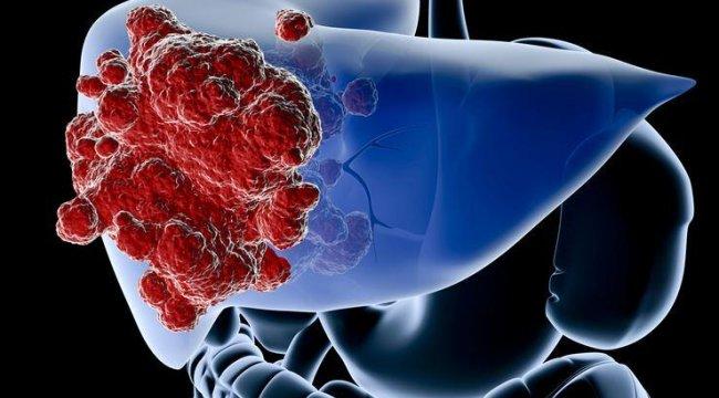 Karaciğer sağlığı için 10 altın kural