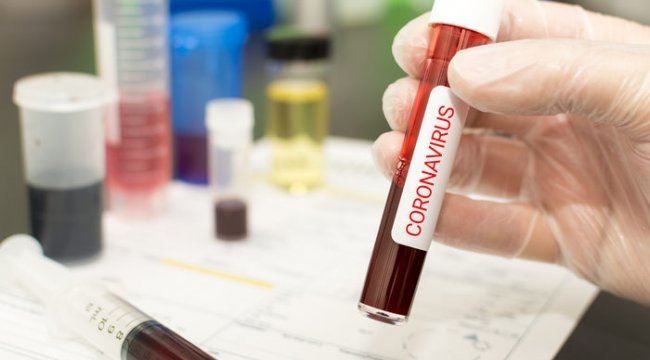 Tansiyon ilaçları koronavirüs ölümlerini artırıyor mu?