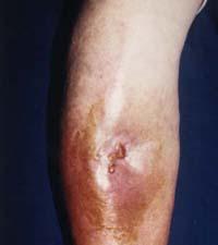 Travmatik artrit