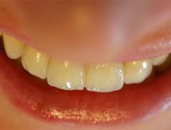 Sağlıksız dişlerinizin sebebi çocukluk hatalarınız değil