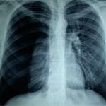 Akciğer ve göğüs boşluğu travmaları
