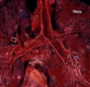 Akciğer tümörleri