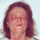 Anaflaksi: alerjik şok