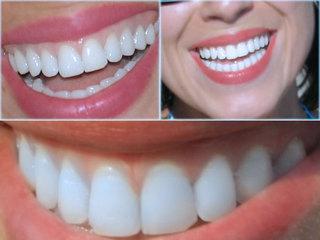 Dişleriniz gelinliğiniz kadar beyaz olsun