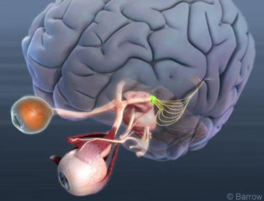 Nöro-oftalmoloji (Göz nörolojisi): Beynin aynası olan göz