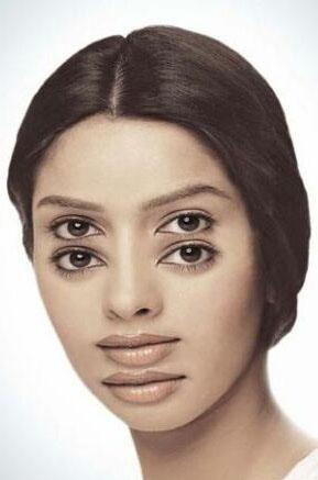 Çift görme nasıl olur? Çift görmeye neden olan hastalıklar nelerdir? Çift görme nasıl tedavi edilir?