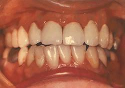 Diş eti hastalıkları