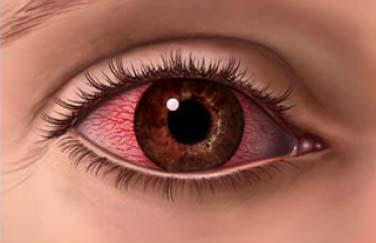 Doğuştan ve ailevi olan göz rahatsızlıkları