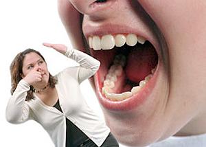 Kötü ağız kokusu