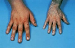 Akromegali: kontrolsüz büyüme hastalığı
