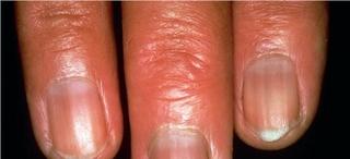 Addison hastalığı: böbreküstü bezi yetersizliği