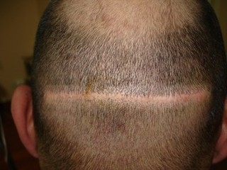 Saç kaybında diyetin hormonal etkileri