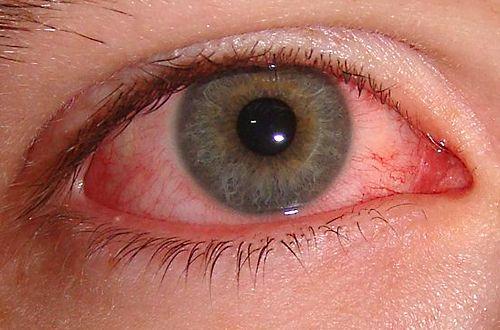 Göz içi iltihabı (Üveit) nedir? tanısı? tedavisi? hakkında bilgi