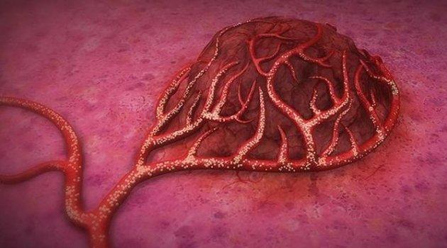 Kolon kanserinde umut ışığı