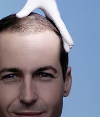 Düşük yağ ve dengeli şeker içeren diyetle saç kaybının önlenmesi