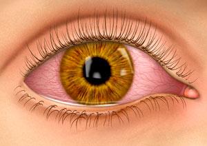 Uçuk mikrobuna bağlı göz hastalıkları