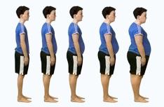 Obezite nedir ? Obezite neden olur ? Obezite tedavisi ?