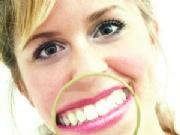 Tartar – diş taşı
