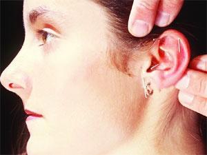 Akupunktur ve zayıflama