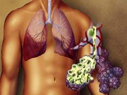 Akciğer enfeksiyonları